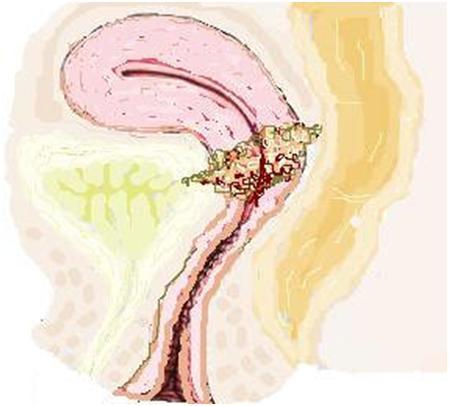 4-Menopozda olunmasına rağmen kanama