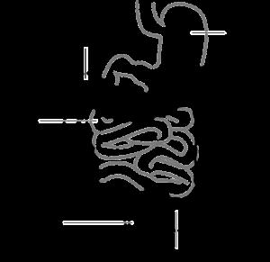 geçirgen bağırsak sendromu, belirtileri,bağırsak geçirgenliği testi,sizintili bagirsak sendromu,sızıntılı bağırsak sendromu, sızdıran bağırsak sendromu, sızıntılı bağırsak sendromu, forum bağırsak sızıntısı, gecirgen bagirsak tedavisi