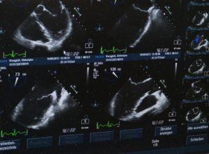 doppler, doppler ultrason nedir, doppler ultrason nasıl çekilir