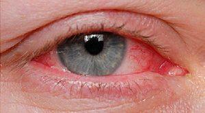 Göz kanlanması neden olur, Göz kanlanmasının tedavisi, Göz kanlanmasının nedenleri