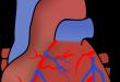 kalp krizi nasıl anlaşılır, kalp krizi ilk yardım, kalp krizi sonrası, kalp spazmı