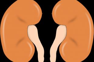 böbrek taşı nasıl düşürülür, böbrek taşı tedavisi