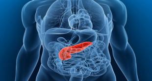 pankreas kanseri yaşam süresi, pankreas kanseri tedavisi, pankreas kanseri belirtileri, pankreas iltihabı, pankreas kanseri nedenleri, pankreas nedir, karaciğer kanseri, pankreas kanseri nedir