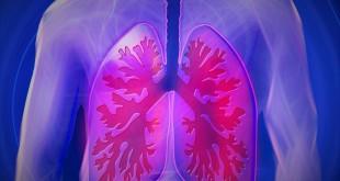 pnömoni bulaşıcı mıdır ,pnömoni tedavisi ,pnömoni belirtileri, pnömoni nedir, koah, pnömoni pdf ,pnömoni bulaşıcı mı, pnömoni hemşirelik bakım planı