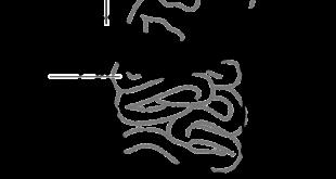 ülseratif kolit tedavisi ne kadar sürer, ülseratif kolit bitkisel tedavi ,ülseratif kolit bitkisel tedavi ,ülseratif kolit diyeti, ülseratif kolit tedavisi, ülseratif kolit belirtileri, ülseratif kolit ameliyatı