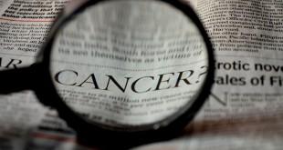kanser belirtileri, kanser çeşitleri, kanser nedir nasıl oluşur, kanser tedavisi, kanser türleri, kanser nedenleri, kanser nasıl oluşur, kanser hücresi