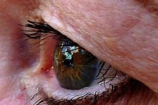 alerjik konjonktivit tedavisi, alerjik konjonktivit göz damlası, alerjik konjonktivit bitkisel tedavi,alerjik konjonktivit nasıl geçer,alerjik konjonktivit belirtileri, alerjik konjonktivit lens kullanımı